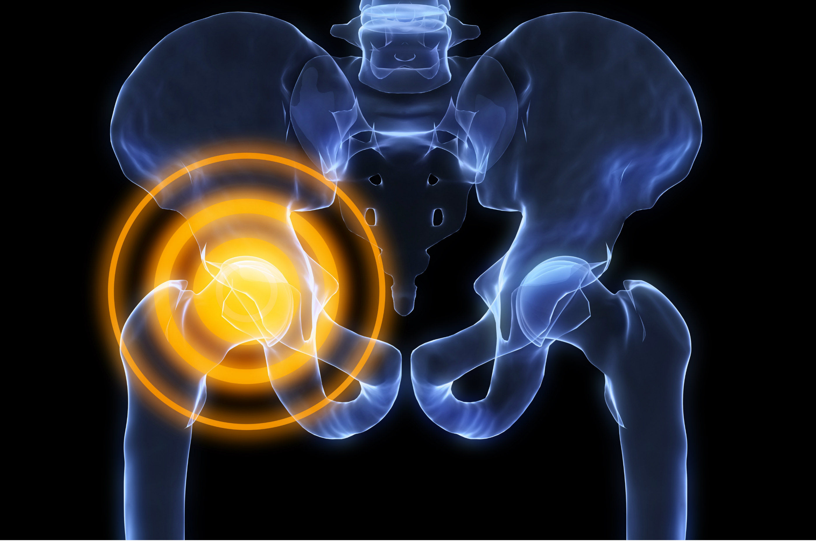 Same-Day Hip Replacement Surgery? Yes! | Carilion Clinic Living