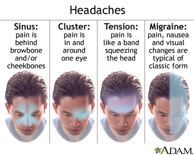 images and descriptions of various types of headaches