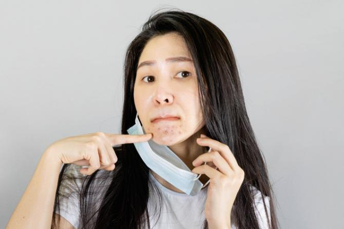 woman removing face mask and pointing at maskne blemishes underneath
