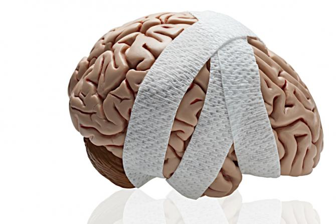 model of a brain wrapped in gauze indicating TBI or concussion