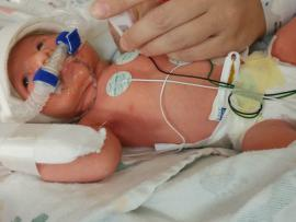 Hollie in the NICU just after she was born