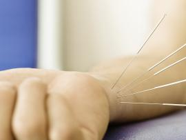 acupuncture needles in wrist joint