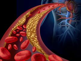 picture of blood cells and cholesterol within a clogged artery in the body