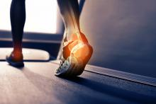 person walking on treadmill with pain in foot