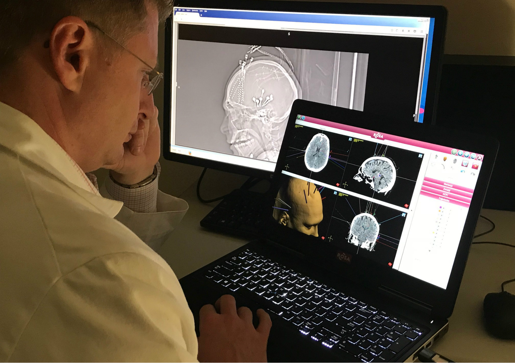 a Carilion Clinic neurosurgeon looking at a 3D brain map from ROSA robot